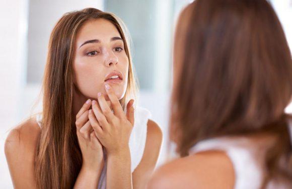 Que signifie l'emplacement de vos boutons d'acné ?