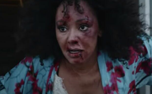 Mel B défigurée: le message poignant de la chanteuse des Spice Girls dans son nouveau clip
