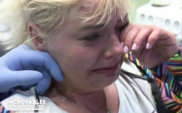 VIDEO Incroyables Transformations: une candidate fond en larmes chez le dentiste