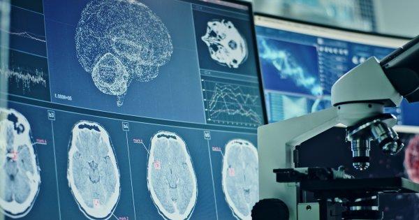 Covid-19: le virus endommagerait le cerveau, même celui des personnes asymptomatiques