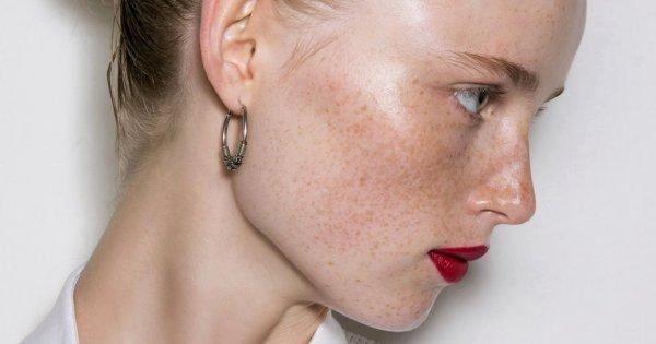 Les antioxydants, des boucliers pour préserver la jeunesse de notre peau