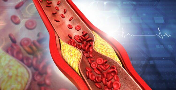 Sténose: artérielle, intestinale, du pylore… Qu'est-ce que c'est?
